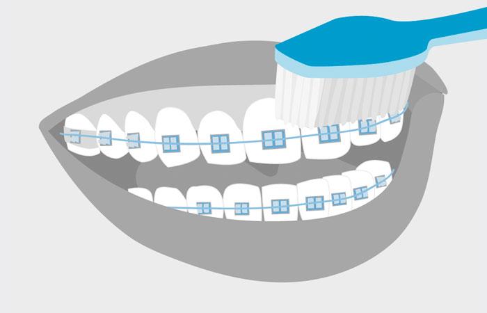 Как лучше чистить брекеты